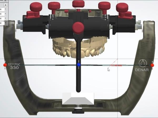 Figure 2-DSDE