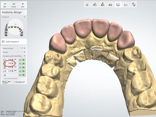 Proper Use of the 3Shape VA with Anterior Smile 10