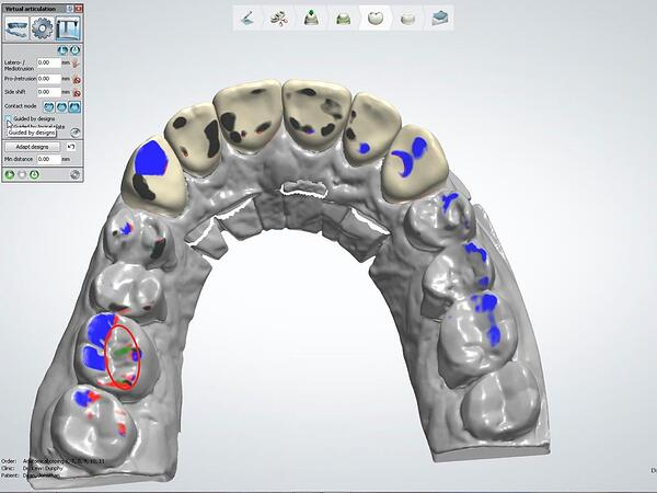 Proper Use of the 3Shape VA with Anterior Smile 2