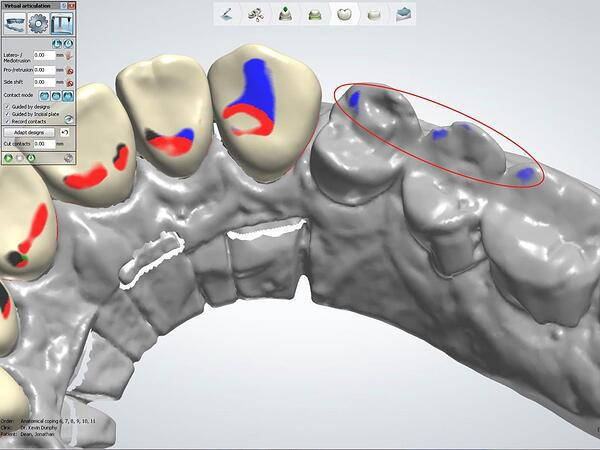 Proper Use of the 3Shape VA with Anterior Smile 3