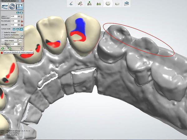 Proper Use of the 3Shape VA with Anterior Smile 4