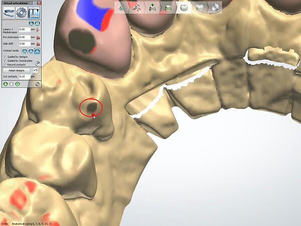 Proper Use of the 3Shape VA with Anterior Smile 5