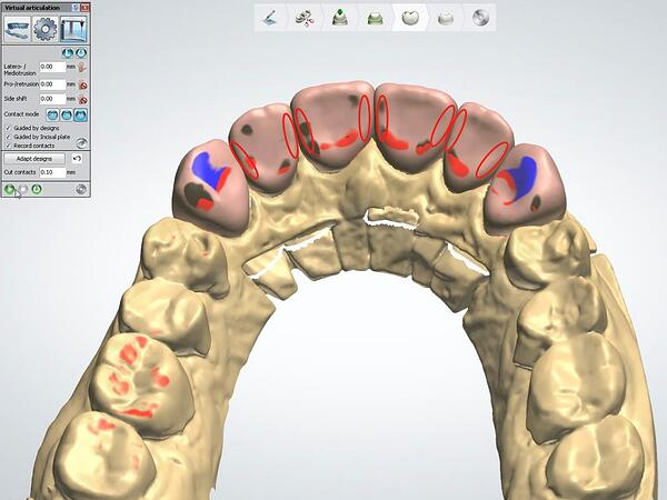 Proper Use of the 3Shape VA with Anterior Smile 7