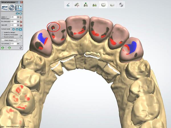 Proper Use of the 3Shape VA with Anterior Smile 8