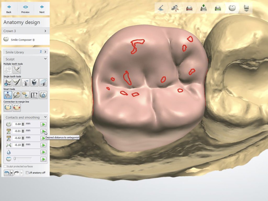 Proper Use of the 3Shape VA with Posterior Crowns 4