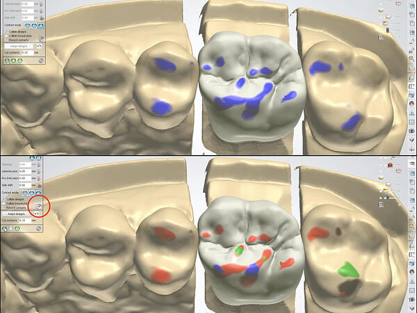 Proper Use of the 3Shape VA with Posterior Crowns 6