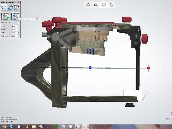 The Proper Setup of the 3Shape Virtual Articulator with