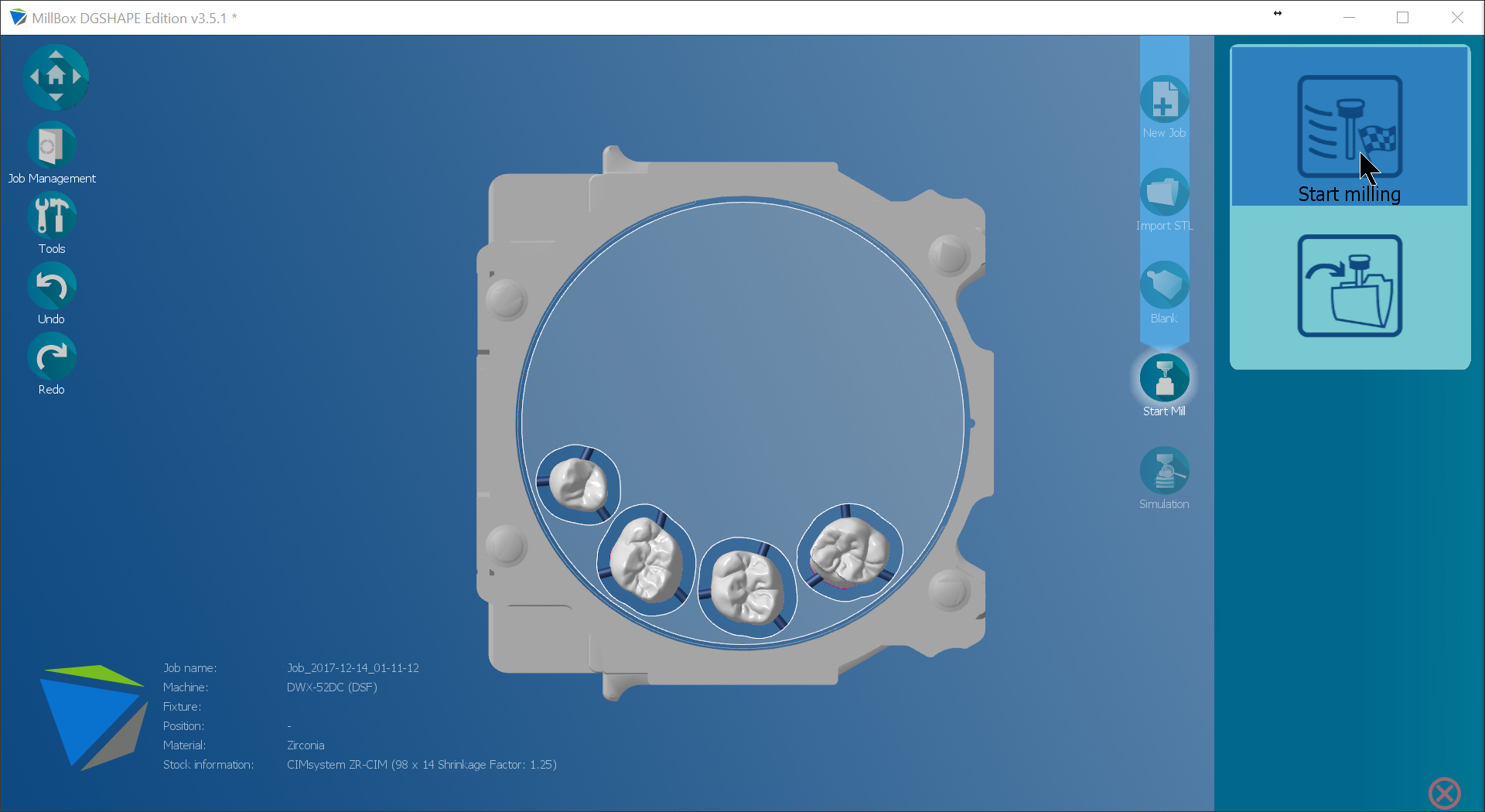 Introducing MillBox – A new powerful CAM Interface powered by SUM3D Dental