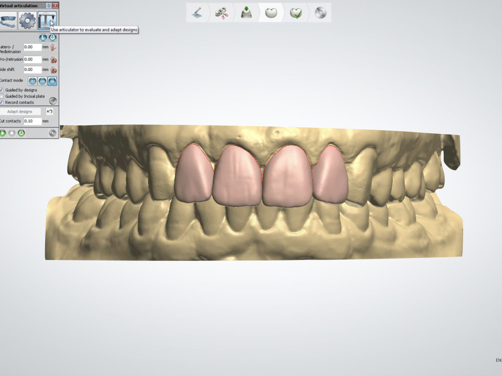 Digital Smile Design Essentials: What You See is Not Necessarily What You Get!