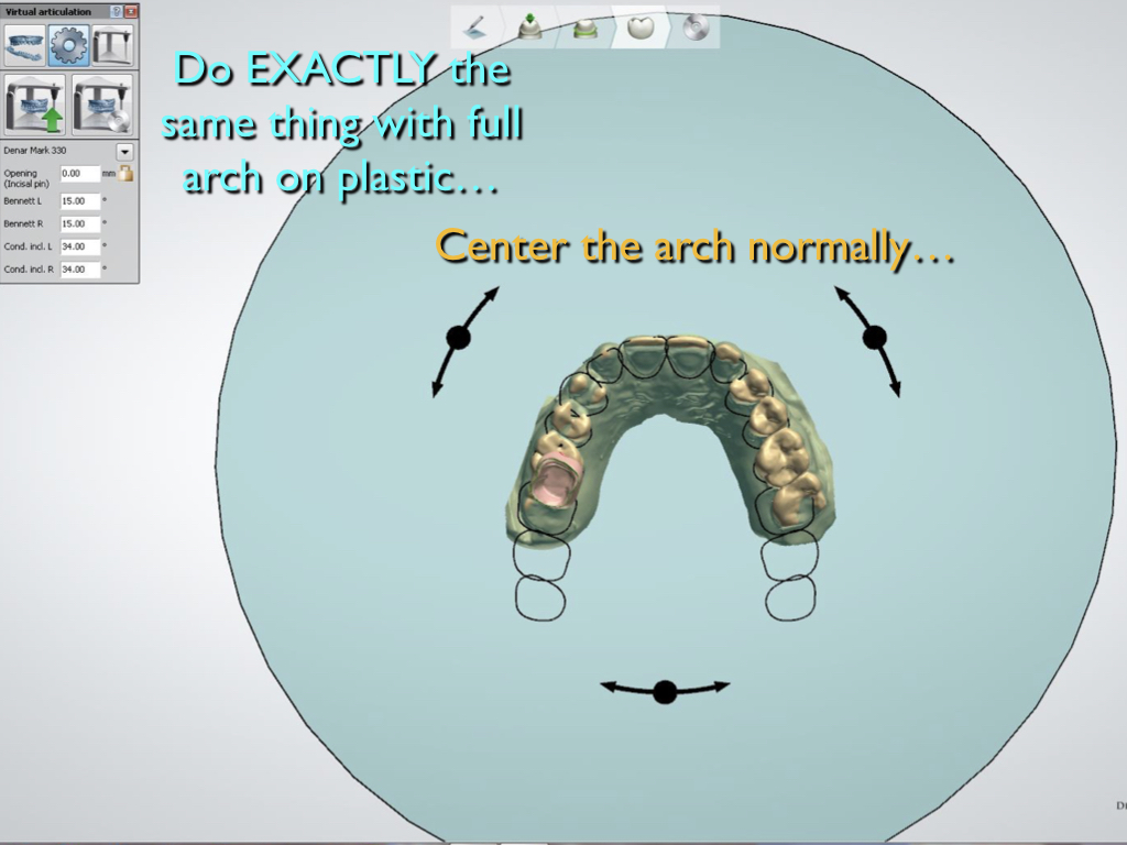 Proper Use of the 3Shape Virtual Articulator with Posterior Crowns on Simple Articulators - Part 1