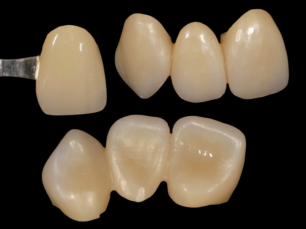 Aren't all Zirconia Discs the Same? Looking Past Translucency and Strength